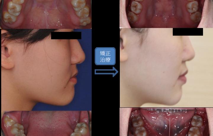 牙齒超亂戽斗不拔牙齒顎矯正治療臉型變美