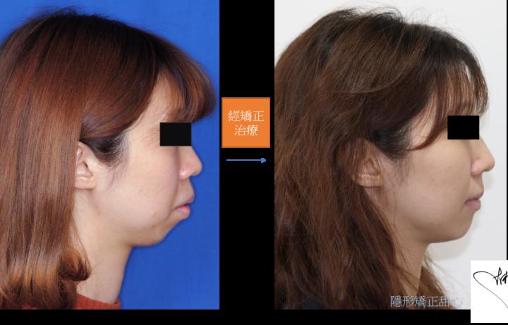 齒顎矯正治療是否真的能讓人變美系列之二 =>下顎後縮 + 上顎暴牙篇